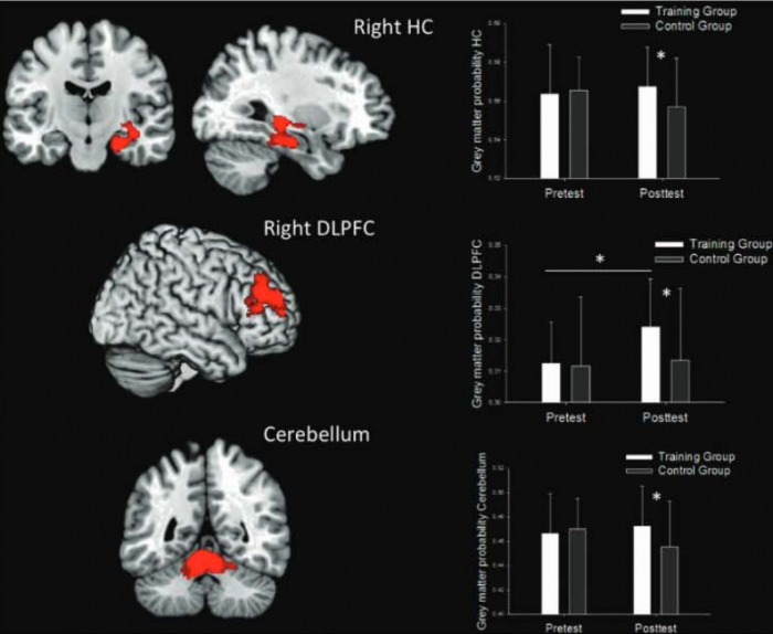 gray matter volume increase resulting from video games